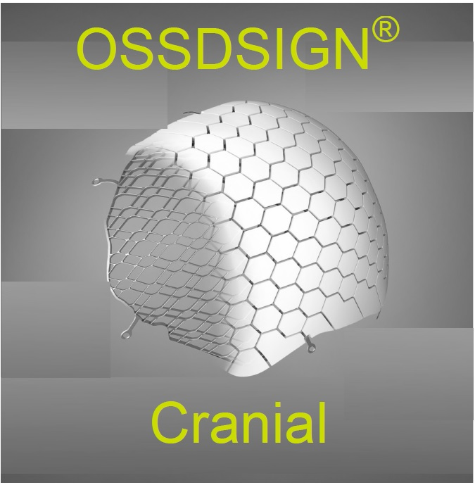 Innovativo sistema per la Cranioplastica
