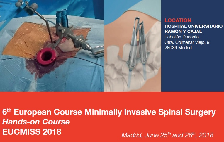 6th European Course Minimally Invasive Spinal Surgery – EUCMISS 2018